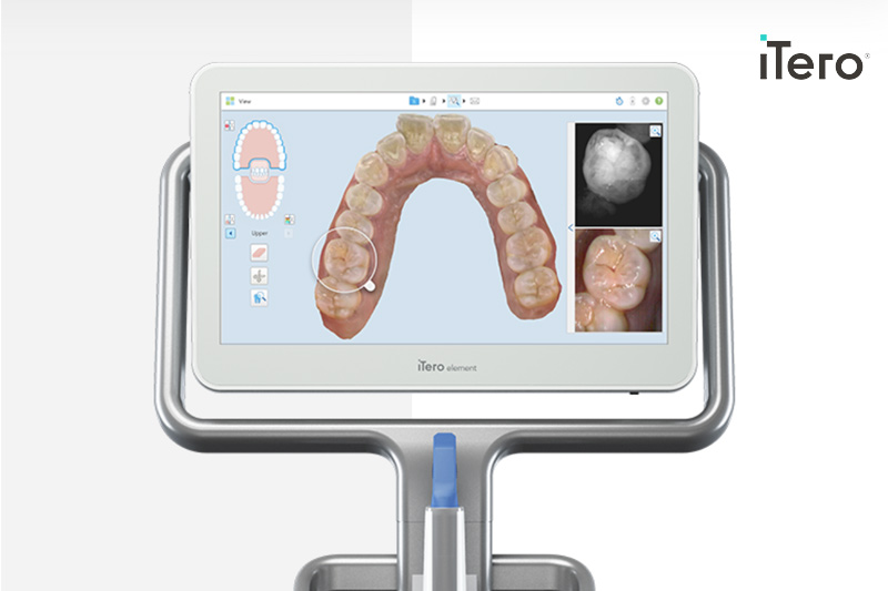 Gilbert Price DDS Special Offer