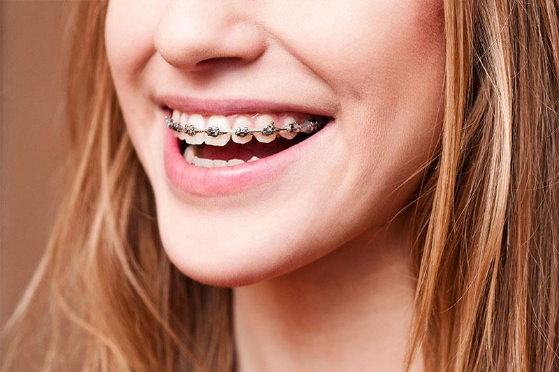 Orthodontics in Porter